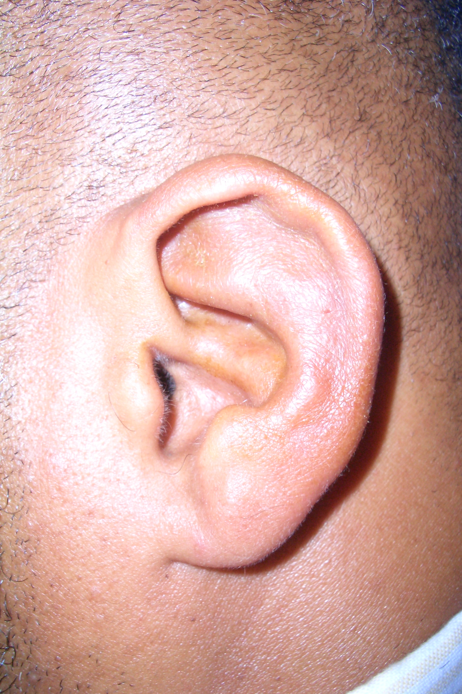Prominent Ears | After | Patient 21