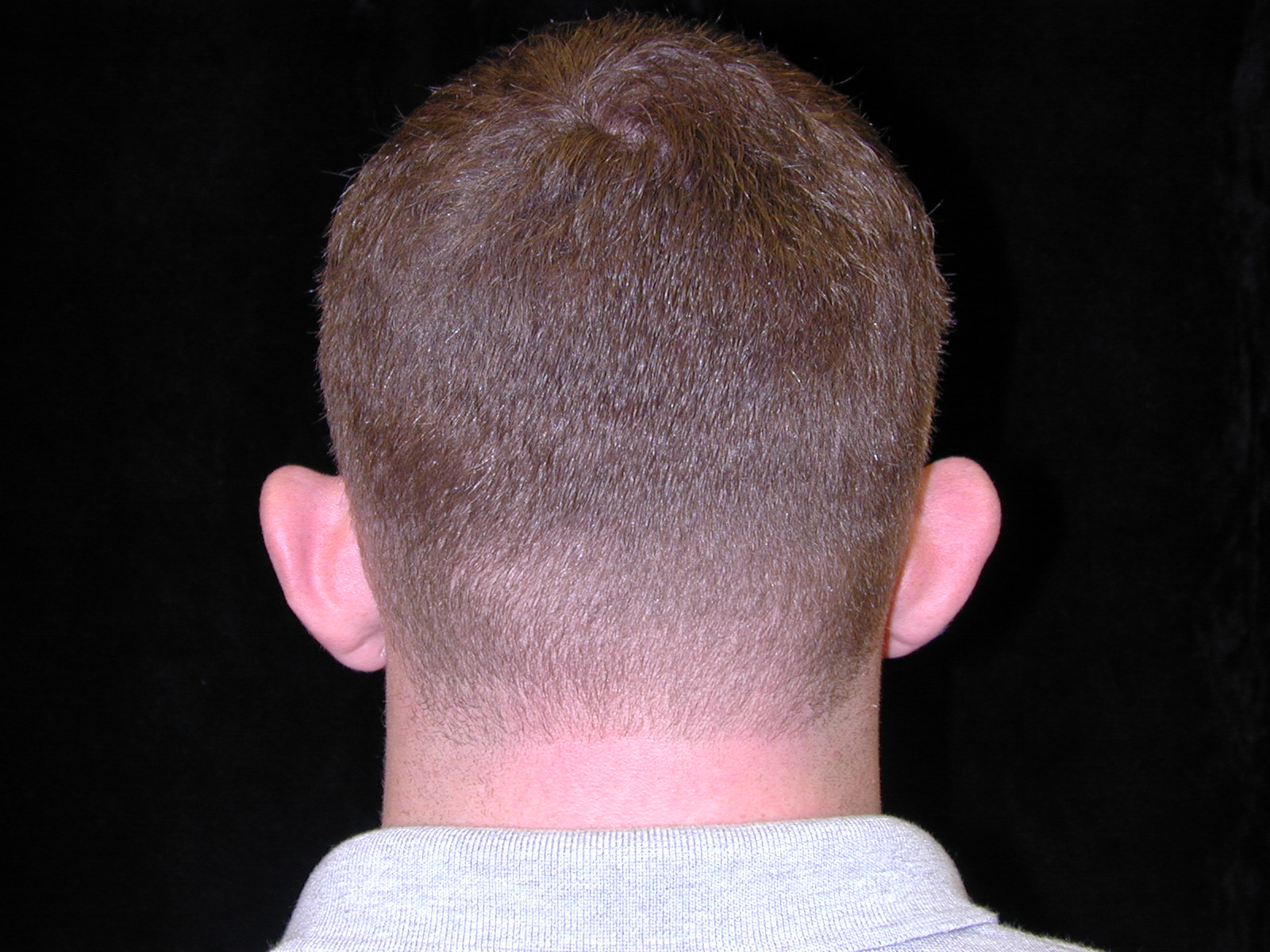 Prominent Ears | After | Patient 50