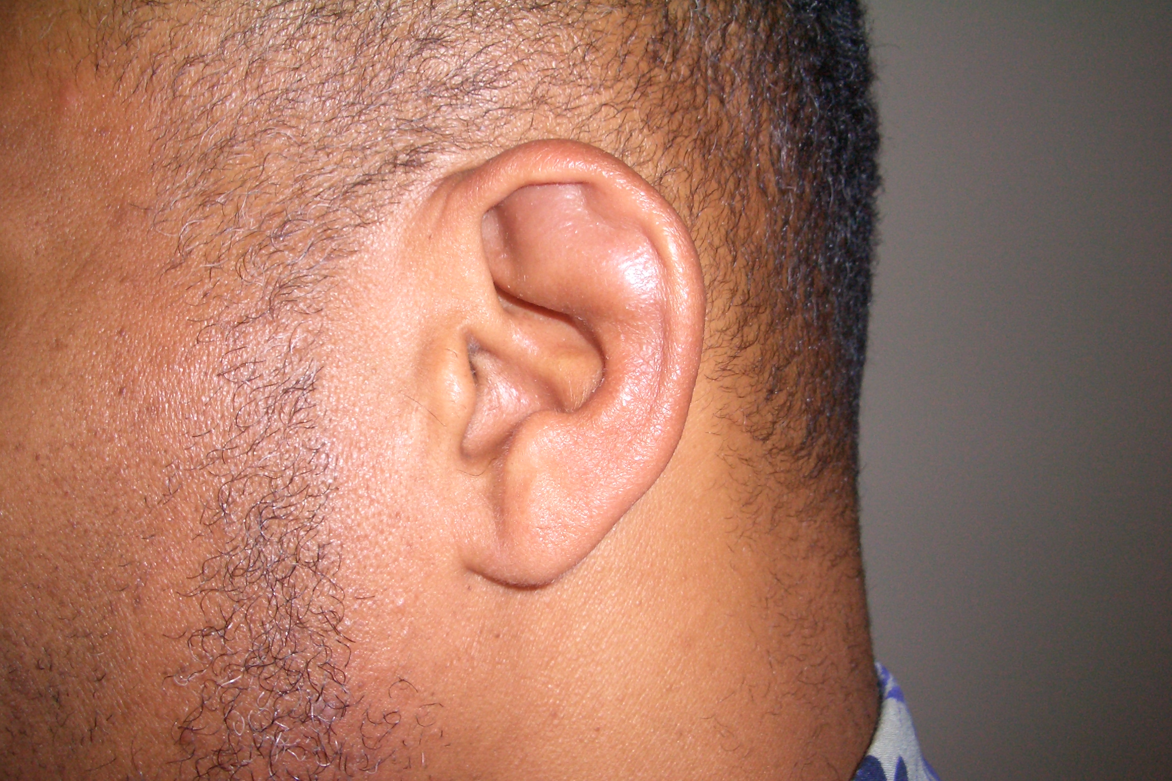 Prominent Ears | Before | Patient 21