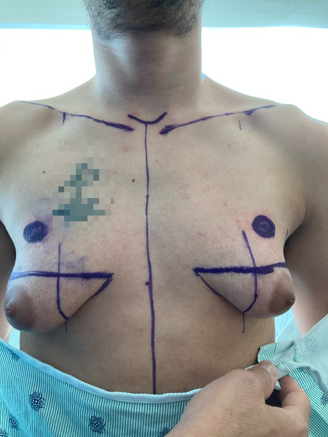 Top Surgery | Before | Patient 39