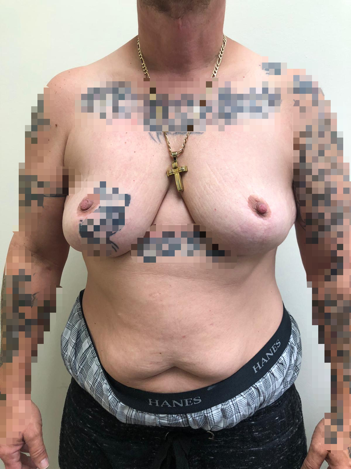 Top Surgery | Before | Patient 49