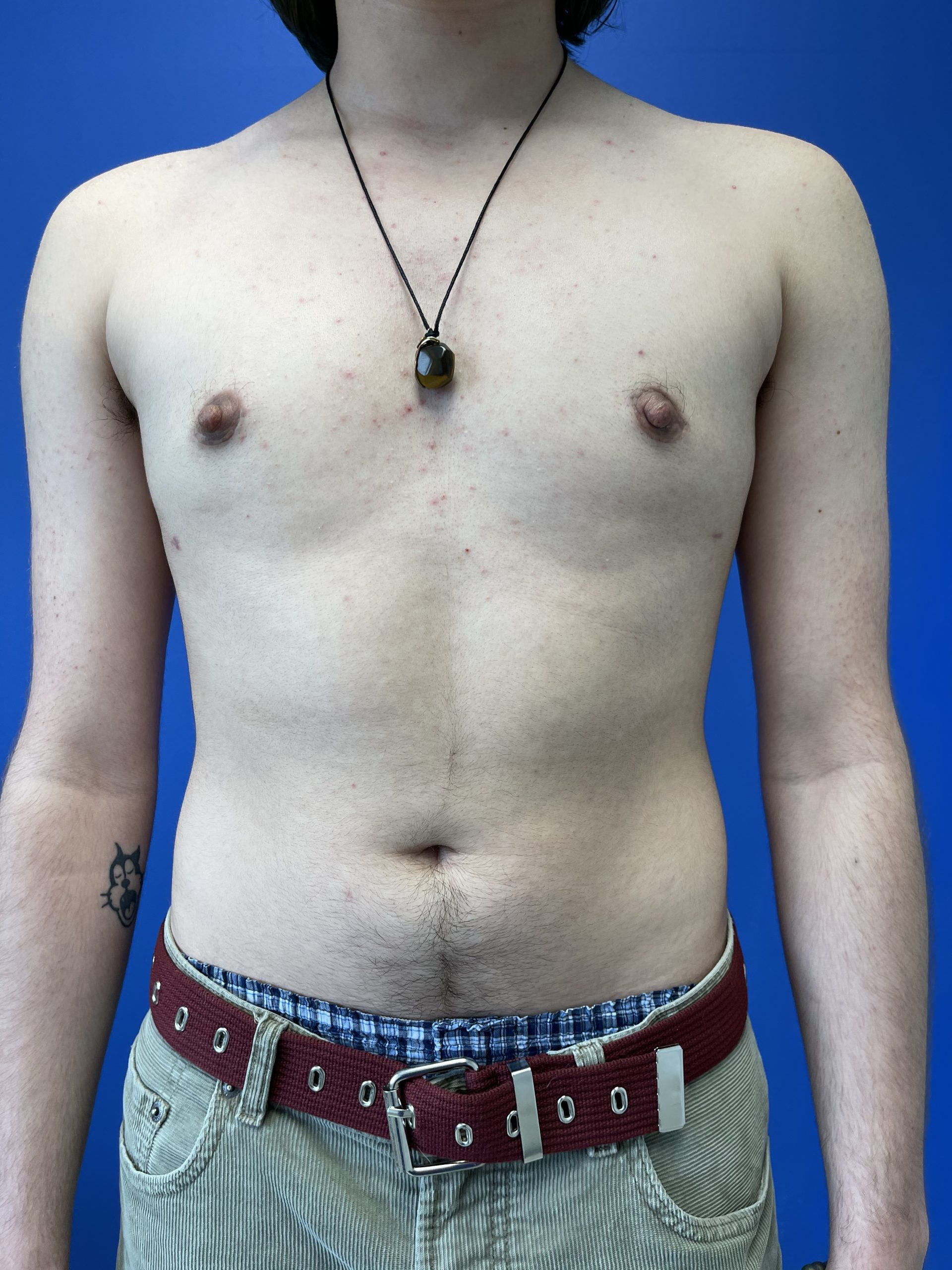 Top Surgery | Before | Patient 76