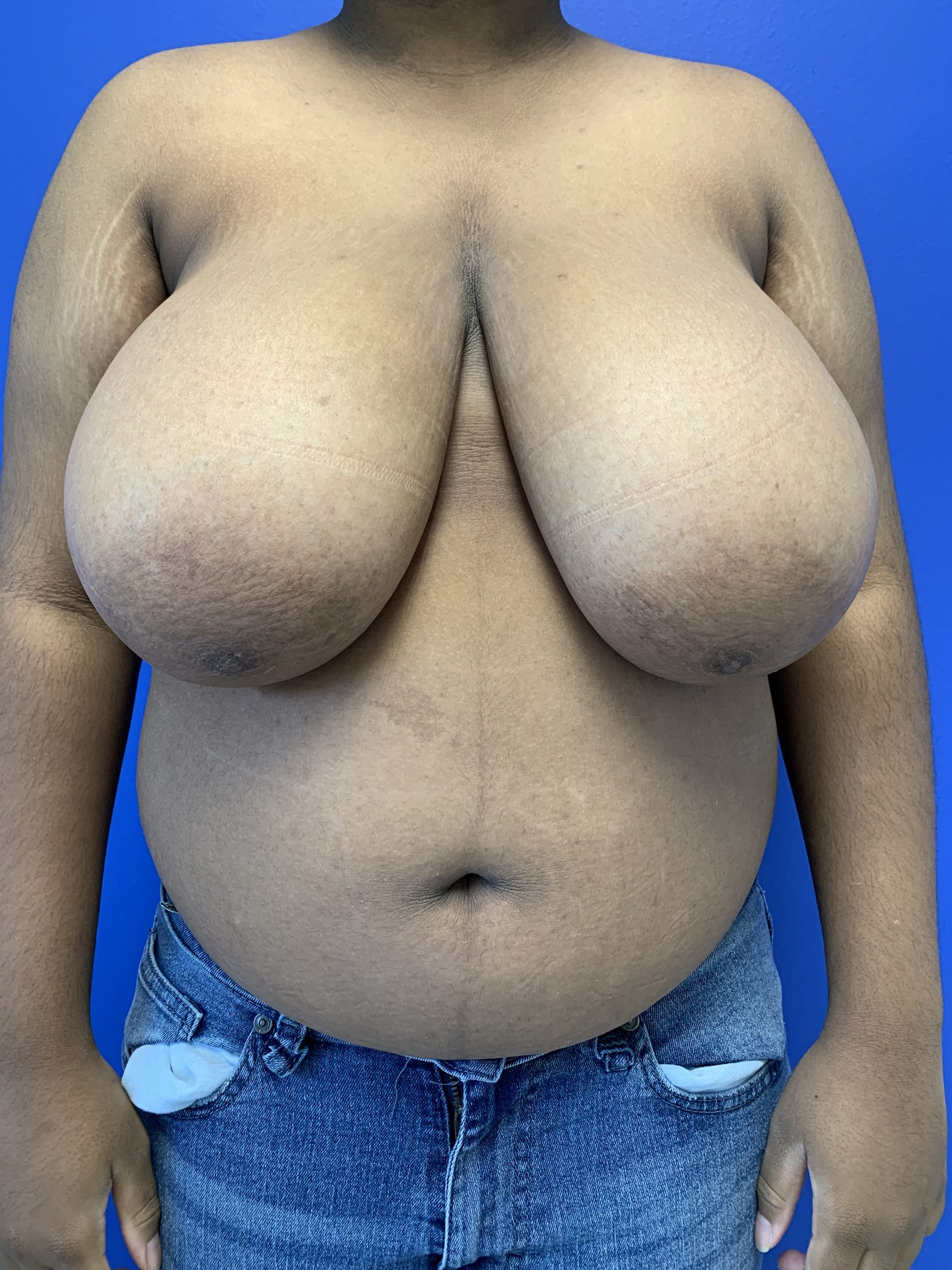 Top Surgery | Before | Patient 70